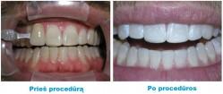 Balinkite dantis lazeriu